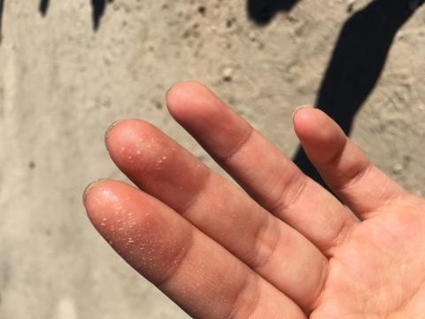 天氣極酷熱,Karena的面部和身體的汗水都蒸發出鹽粒